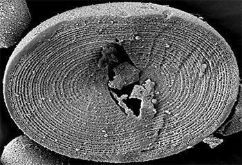 Image result for starch grains under microscope